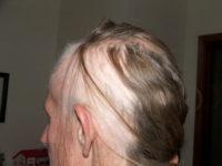 LIsa Hair Loss
