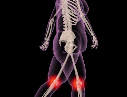 Target gut microbiome for joint pain